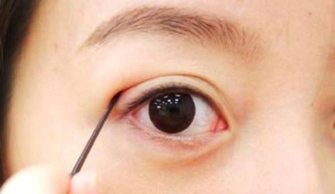 Mắt đẹp quyến rũ với xăm mí mắt vi chạm Hàn Quốc1