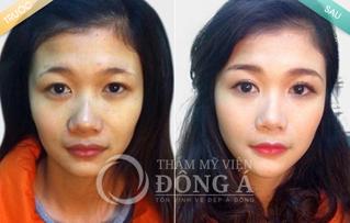 Kết quả phun xăm môi