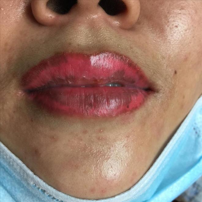 Dù bỏ ra nhiều tiền để chữa trị nhưng không thể lấy lại vẻ đẹp ban đầu của môi