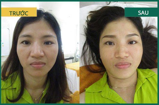 Hình ảnh khách hàng trước sau khi phun thêu chân mày